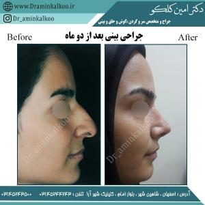جراحی بینی اصفهان 7