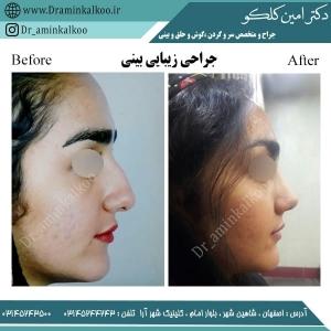 جراحی بینی اصفهان 8