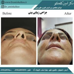 جراح بینی اصفهان