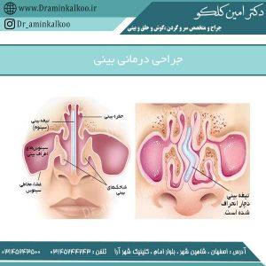 جراحی درمانی بینی