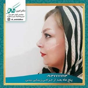 جراحی-بینی-اصفهان-10
