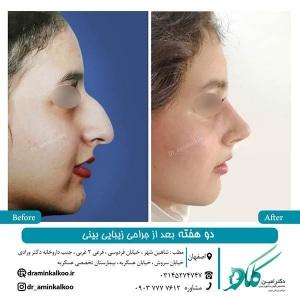 جراحی-بینی-اصفهان-11