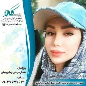 جراحی-بینی-اصفهان-15