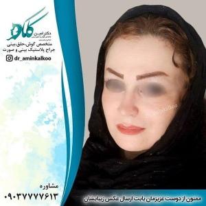 جراحی-بینی-اصفهان-16