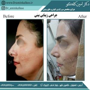 جراحی بینی اصفهان 2