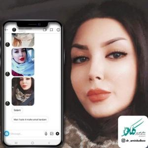 جراحی-بینی-اصفهان-26