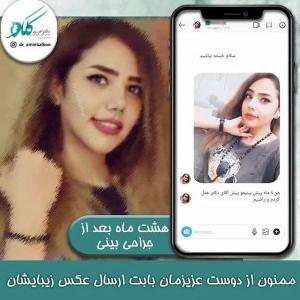 جراحی-بینی-اصفهان-29