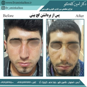 جراحی بینی اصفهان 3