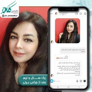 جراحی-بینی-اصفهان-30