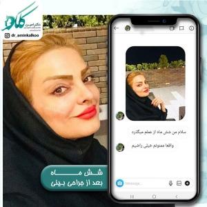 جراحی-بینی-اصفهان-31