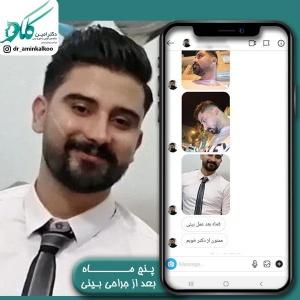 جراحی-بینی-اصفهان-37