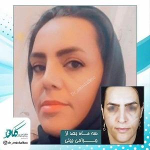 جراحی-بینی-اصفهان-38
