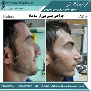 جراحی بینی اصفهان 4