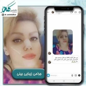 جراحی-بینی-اصفهان-40