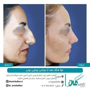 جراحی-بینی-اصفهان-46