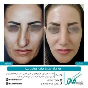 جراحی-بینی-اصفهان-47