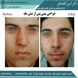 جراحی بینی اصفهان 5