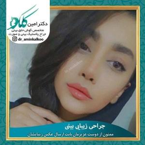 جراحی-بینی-اصفهان-51