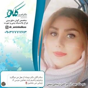 جراحی-بینی-اصفهان-57
