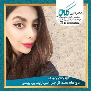 جراحی-بینی-اصفهان-58