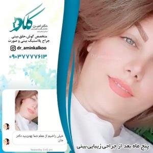 جراحی-بینی-اصفهان-59