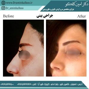 جراحی بینی اصفهان 6