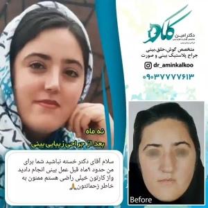 جراحی-بینی-اصفهان-60