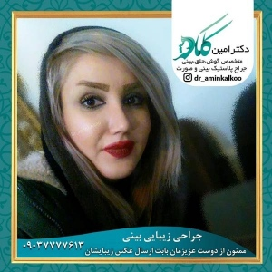 جراحی-بینی-اصفهان-61