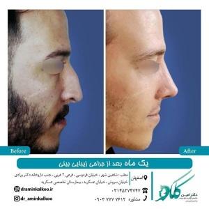 جراحی-بینی-اصفهان-62