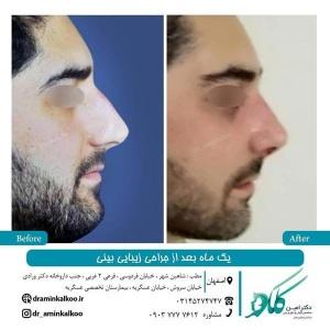 جراحی-بینی-اصفهان-64