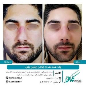 جراحی-بینی-اصفهان-65