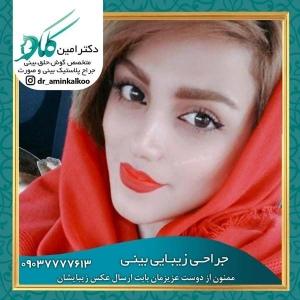 جراحی-بینی-اصفهان-66