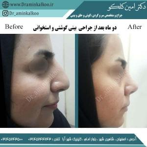 جراحی بینی 50