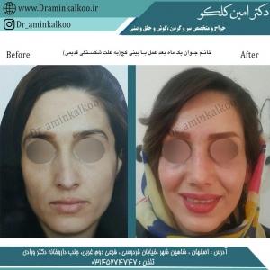 جراحی بینی 60