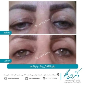 درمان افتادگی پلک
