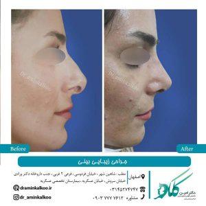 جراحی بینی در اصفهان